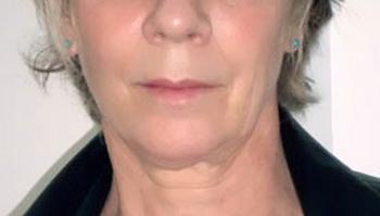 Martine Schambacher