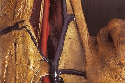Visite De La Collection D'anatomie à Strasbourg